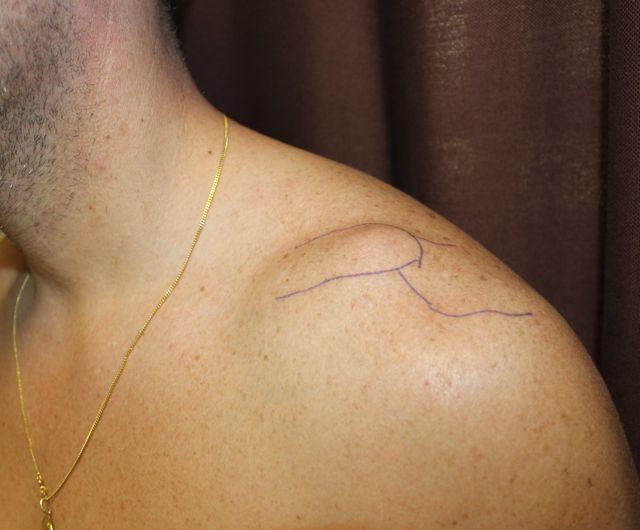 El tratamiento de la hernia protruzii sheynogo de la columna vertebral