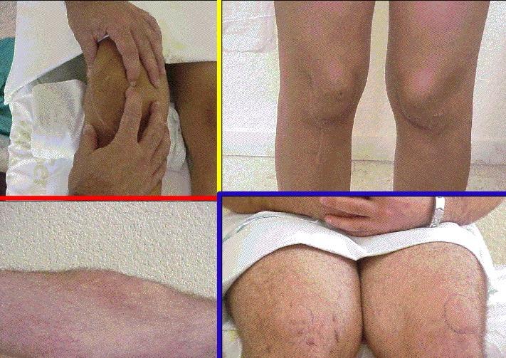rotulas www.clinicabernaldez.com